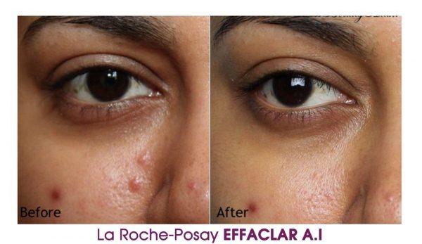 Kem-dng-gim-mn-La-Roche-Posay-Effaclar-A.I-Vivalust.vn-5-.jpg